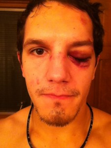 schrock black eye